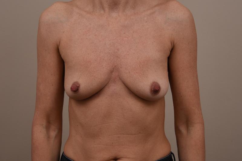 voor de borstvergroting