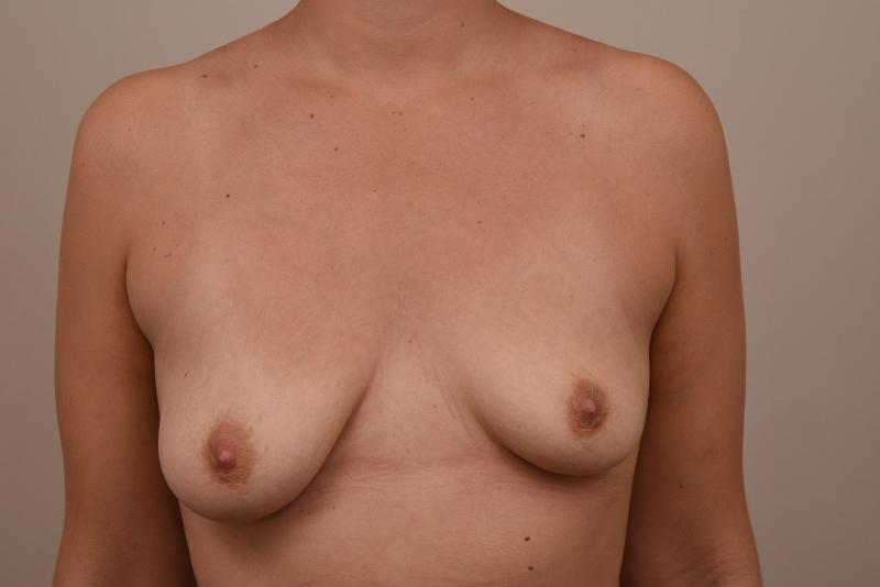 borstvergroting voor de operatie