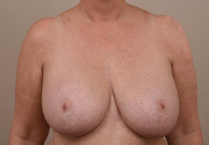 verwijderen prothesen en borstlift voor