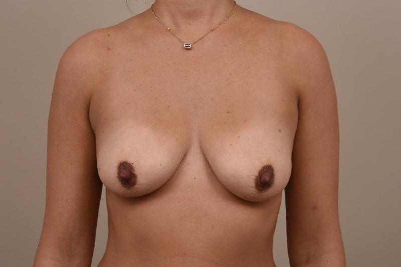 borstvergroting voor