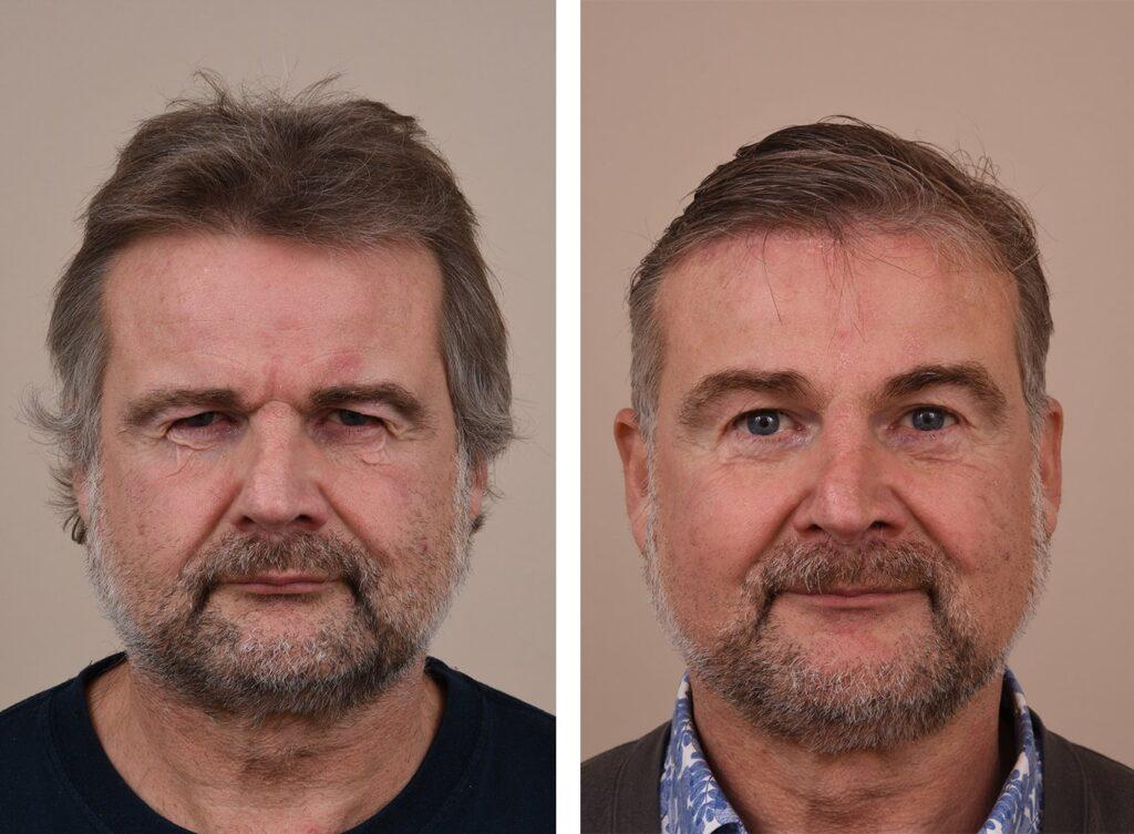 Forehead lift at Aesthetic Center Jan van Goyen