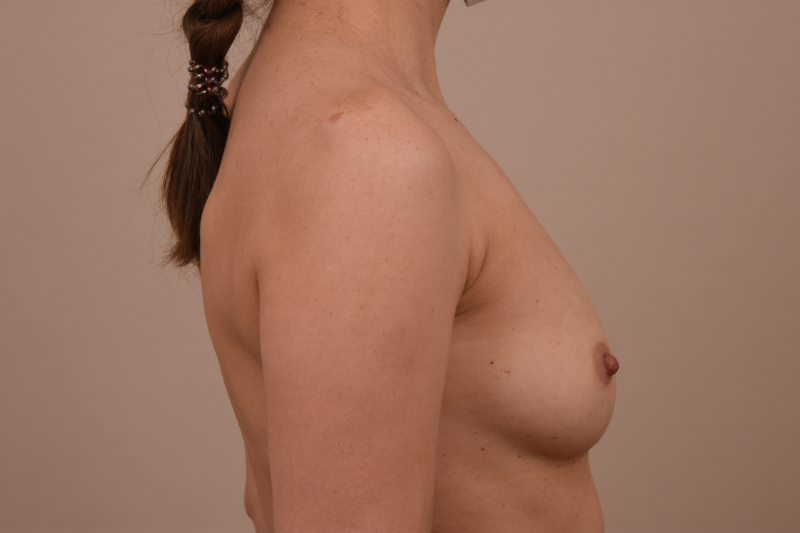 voor na borstvergroting